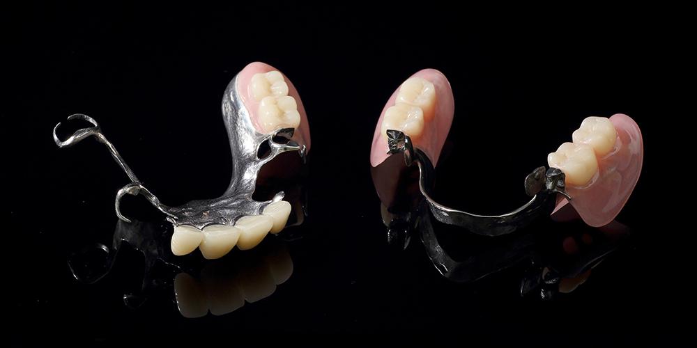 金属床義歯(部分)