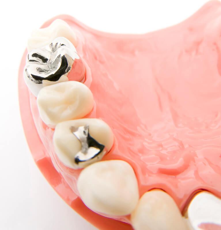 人口歯(メタル)