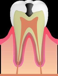C2:歯の内面の虫歯