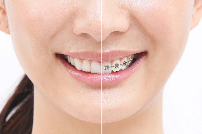 当院の矯正歯科の考え方